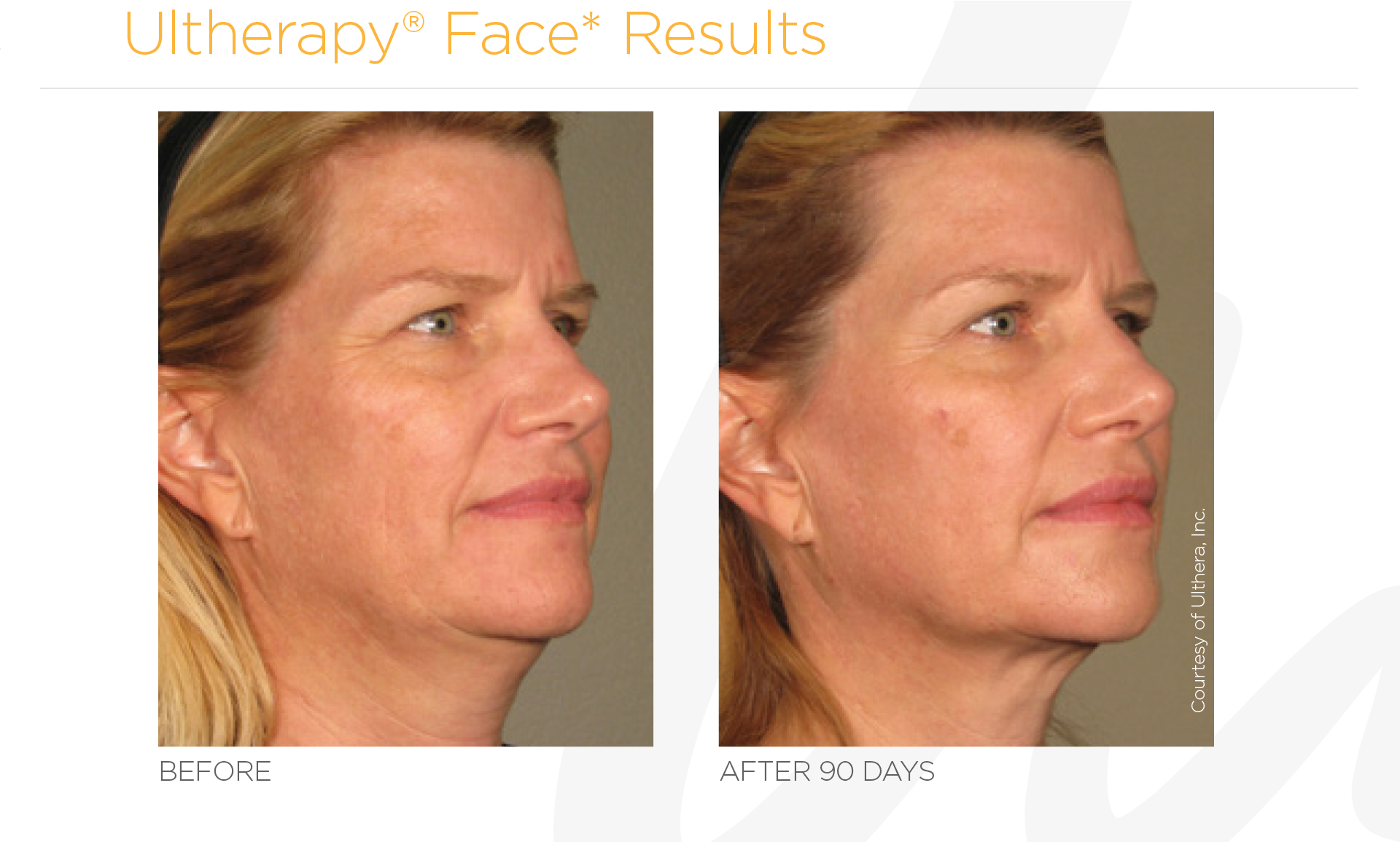 Ultherapy Face Before And After Results
